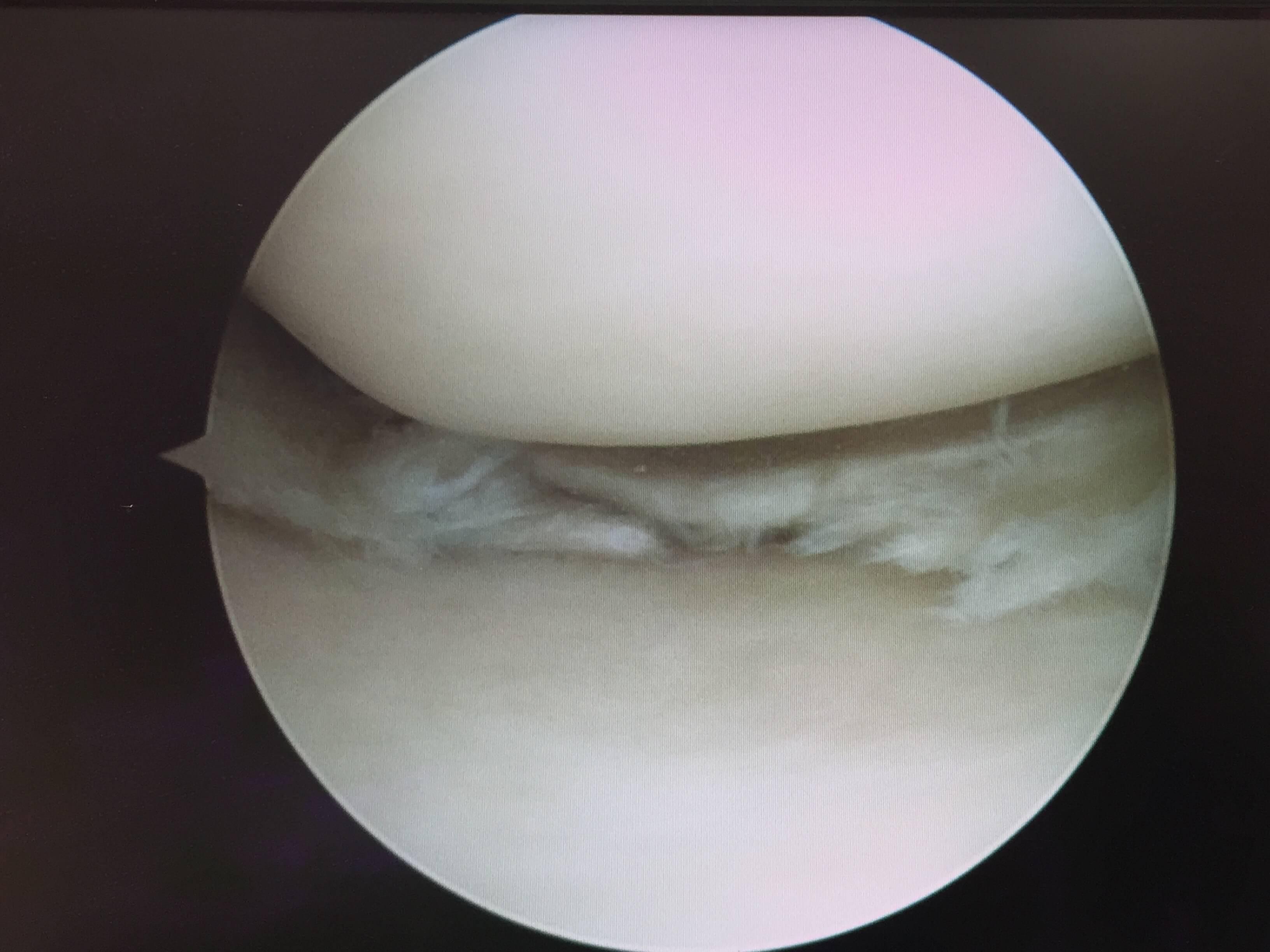 Orthopaedics Victoria : Patient Information - Knee